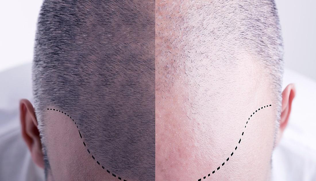 Transplante Capilar Técnica Magna Clínica Miorali e BIanco